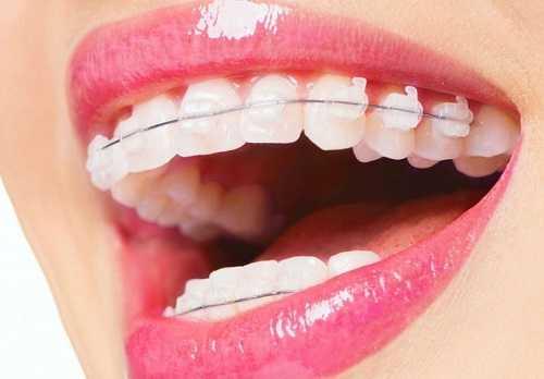 ортодонт в харькове