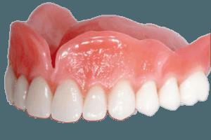 съемные зубные протезы цена украина