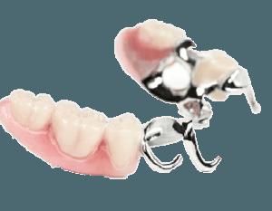 съемный зубной протез цена украина