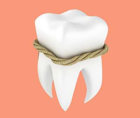 лечение зубов в харькове