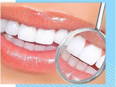 отбеливание зубов цена харьков